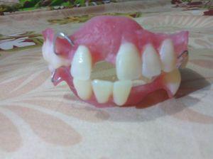gigi palsu